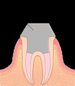 歯の土台(コア)の画像