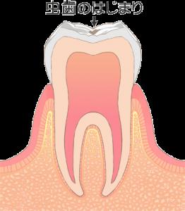 虫歯の進行 レベル0(c0)