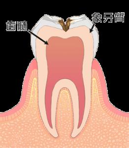 虫歯の進行 レベル2(c2)