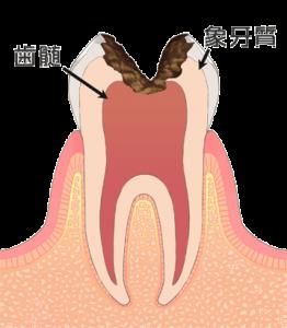 虫歯の進行 レベル3(c3)
