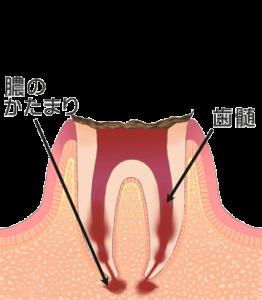 虫歯の進行 レベル4(c4)