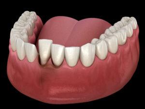 歯が折れた!歯が抜けた!!事故や転倒などで歯に損傷を受けた時の状態別の処置と根管治療|歯がずれた写真