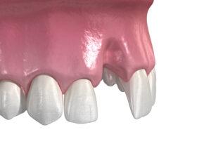 歯が折れた!歯が抜けた!!事故や転倒などで歯に損傷を受けた時の状態別の処置と根管治療|歯が抜けた
